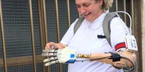 mano bionica 1